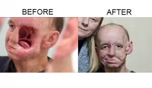 3d-medical-Before-and-After